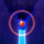 La vitamina che può salvare la tua prostata